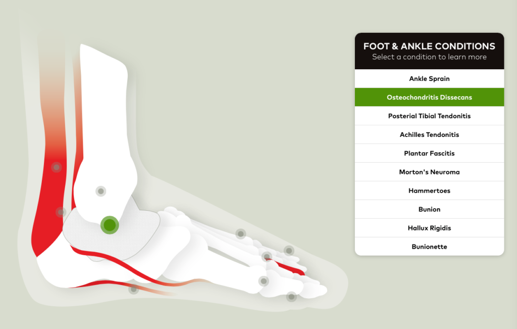 Foot___Ankle_Conditions___Orthopedic_Foot___Ankle