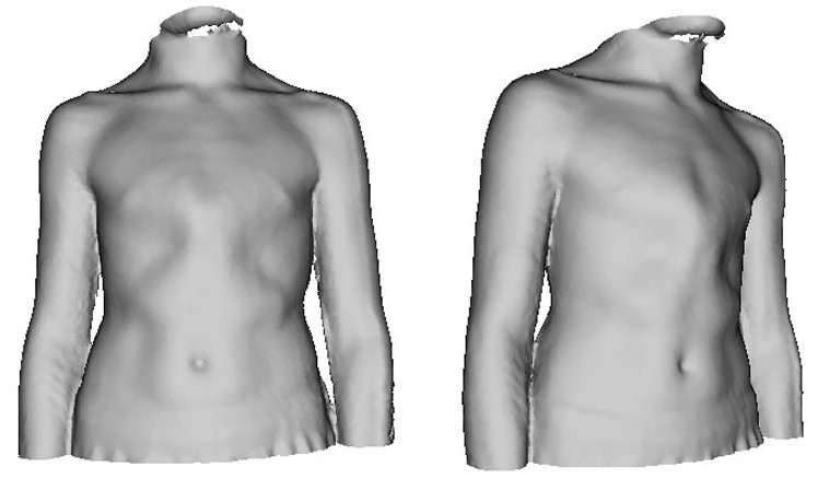 3D model used to assess and measure severity of pectus deformity