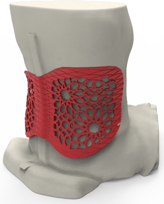 Using a 3D scan of Rožkova's lower back, Baltic3D, a Stratasys Latvian reseller, designed and 3D printed a back brace customized specifically to her middle spine, overcoming the discomfort and limited movement found in conventional supports.