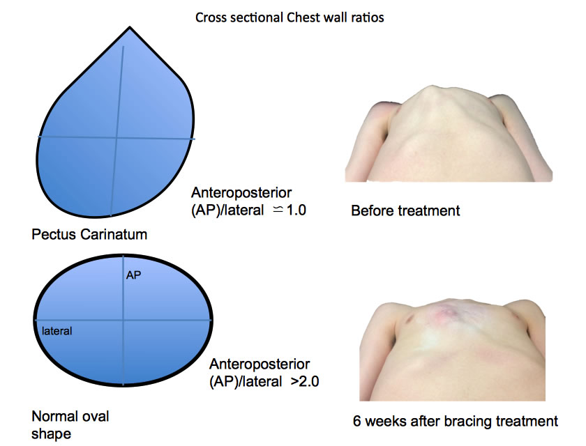chest-wall-ratios