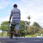 Quicker weight bearing may be safe after knee cartilage surgery