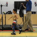 Robot suit helps children with cerebral palsy to walk better