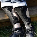 Gait scores can help identify CMT and determine severity, study suggests
